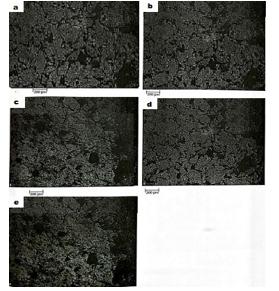 شکل 3-2 ریز ساختارهای کامپوزیت های منیزیم – کربن نانو تیوب – روی تهیه شده با میکروسکوپ نوری با درصدهای وزنی مختلف روی a:0.7% b:1.5% c:3.0% d:5.0% e:7.0%